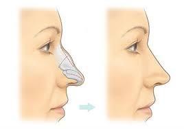 عملية تجميل الأنف الجراحية