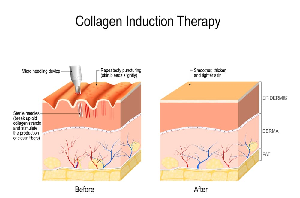 المايكرونيدلينك تحفز الكولاجين